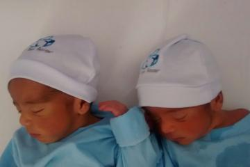 Parto gemelar; Parto na penumbra; parto humanizado; parto cesariana; parto respeitoso; parto cesárea; cesárea intra-parto