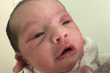 Parto humanizado; parto normal; parto rápido; parto respeitoso; Parto natural